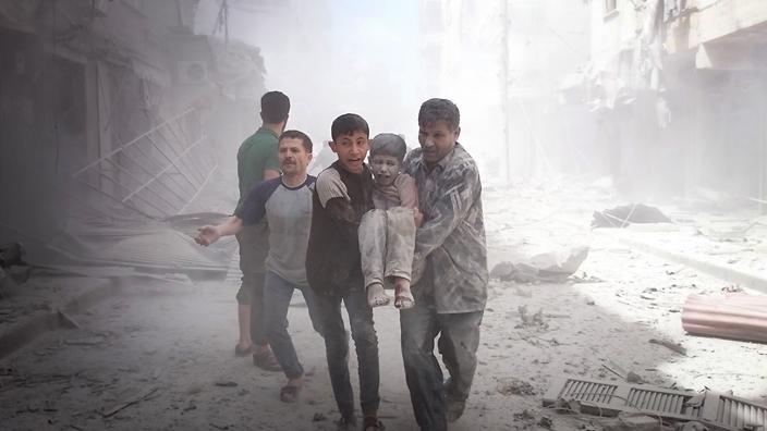 Siria Aleppo bambino ferito bombardamenti russi