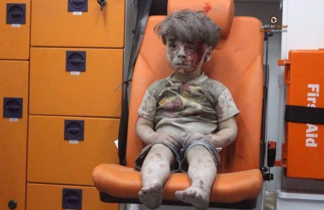 aleppo bambino ferito foto siria
